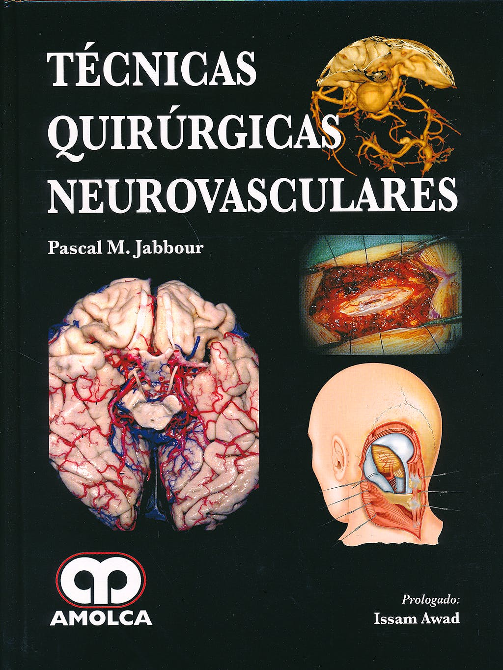 Portada del libro 9789588816371 Tecnicas Quirurgicas Neurovasculares