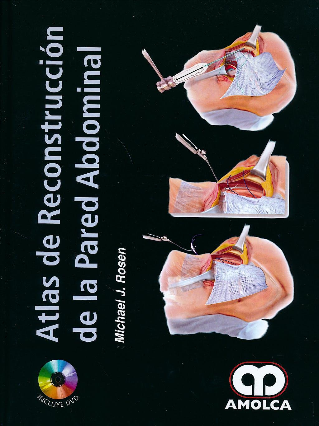 Portada del libro 9789588816401 Atlas de Reconstrucción de la Pared Abdominal + DVD