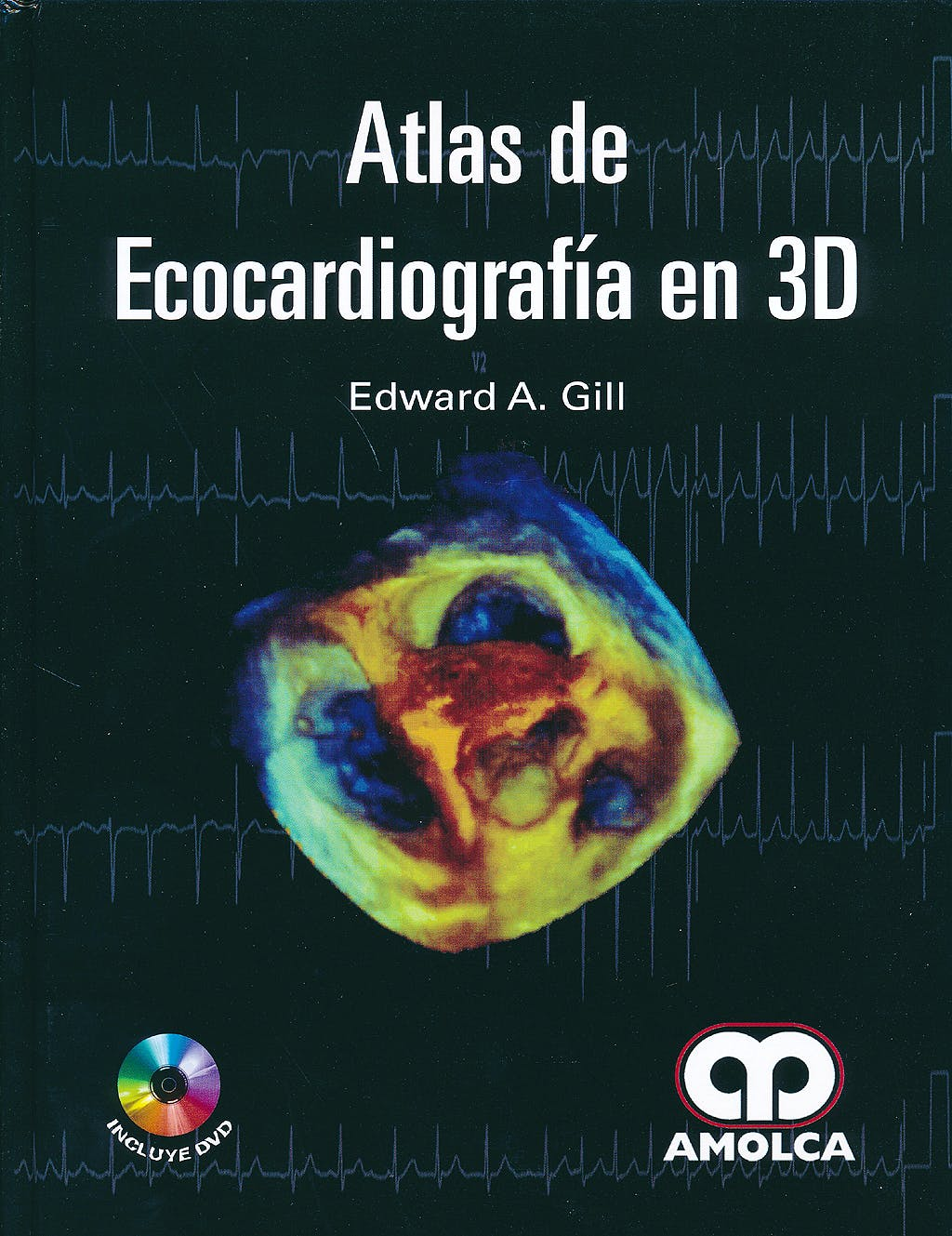 Portada del libro 9789588816487 Atlas de Ecocardiografía en 3D + DVD