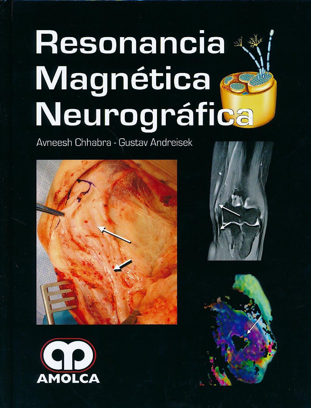 Portada del libro 9789588816500 Resonancia Magnetica Neurografica