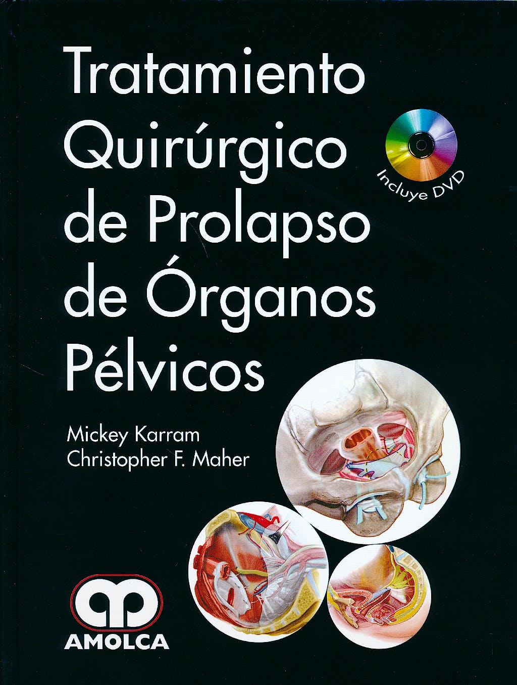 Portada del libro 9789588816531 Tratamiento Quirúrgico de Prolapso de Órganos Pélvicos + DVD