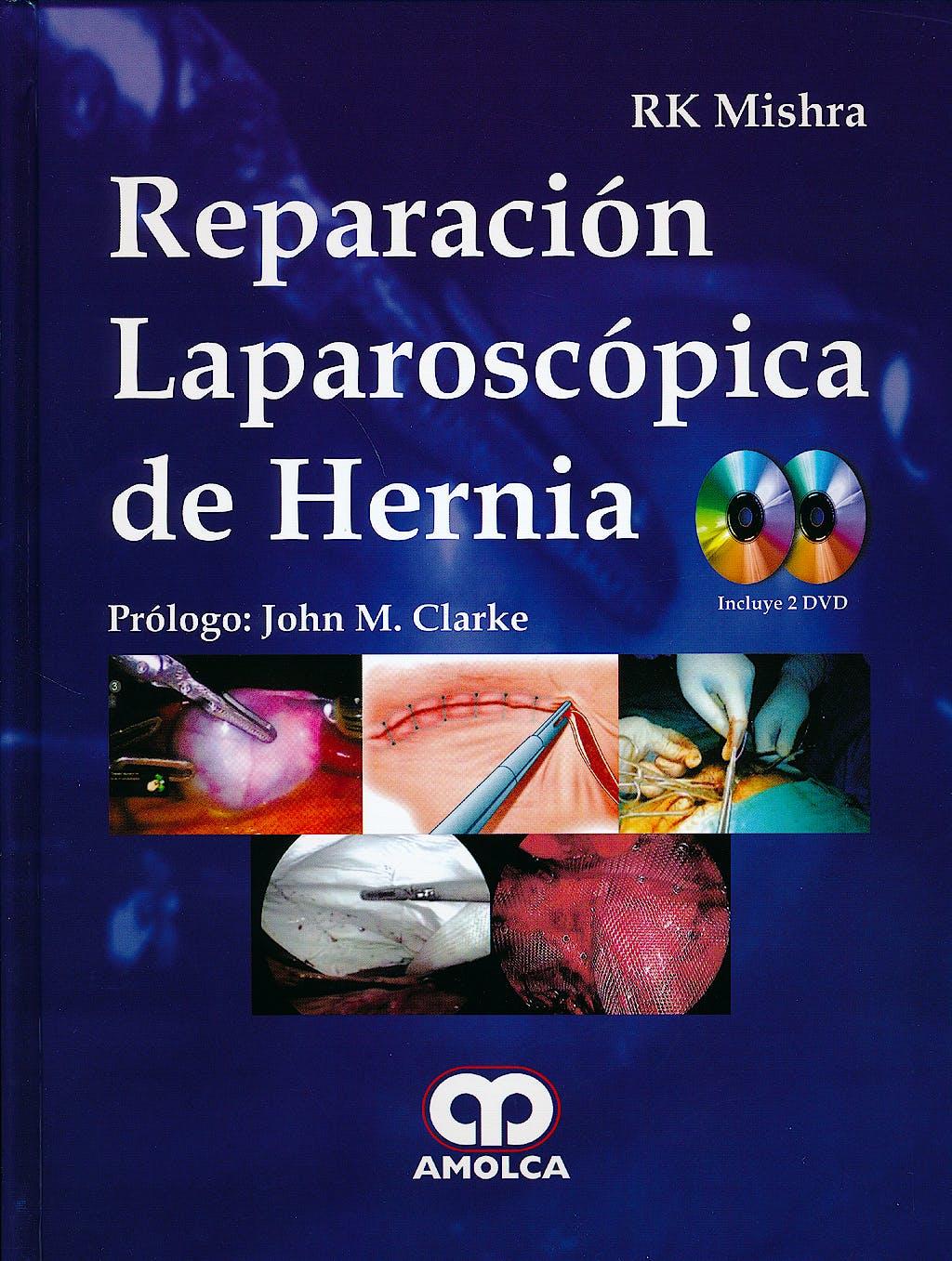 Portada del libro 9789588816715 Reparación Laparoscópica de Hernia + 2 DVDs