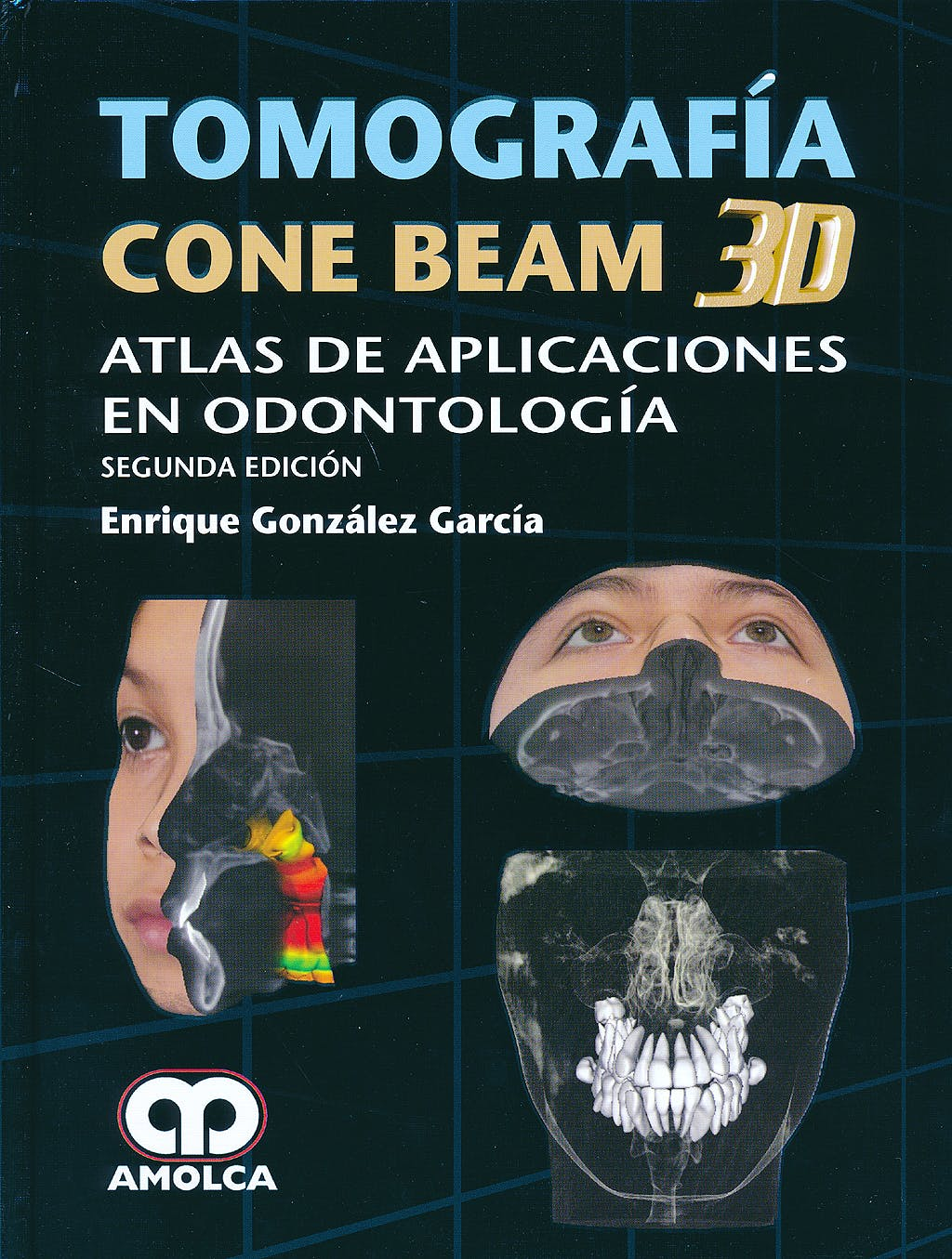 Portada del libro 9789588816722 Tomografía Cone Beam 3D. Atlas de Aplicaciones en Odontología