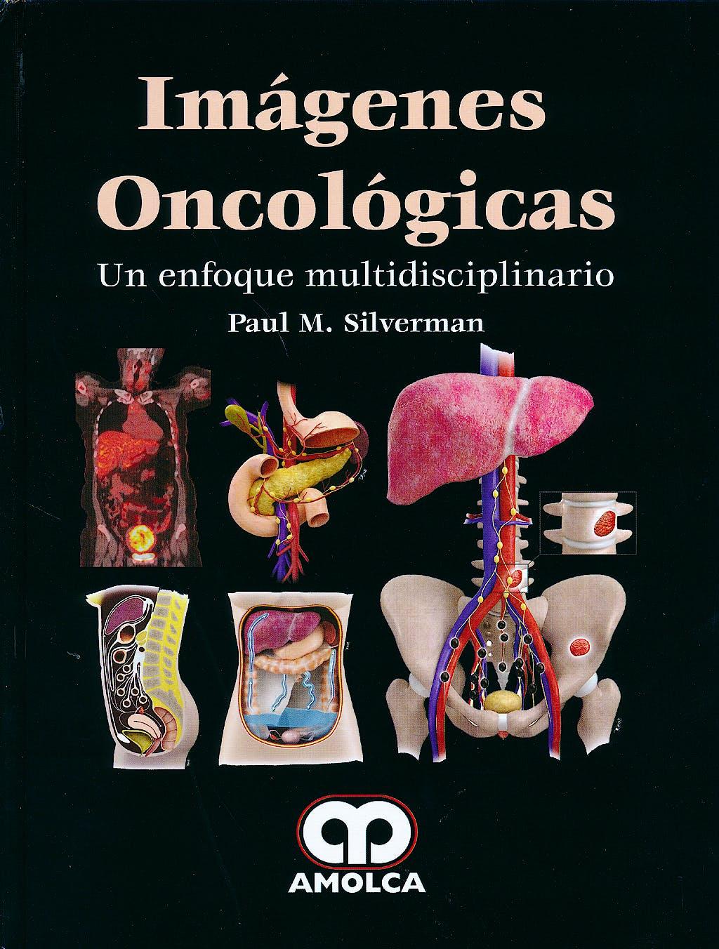 Portada del libro 9789588816739 Imágenes Oncológicas. Un Enfoque Multidisciplinario