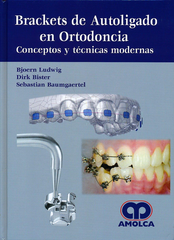 Portada del libro 9789588816791 Brackets de Autoligado en Ortodoncia. Conceptos y Técnicas Modernas