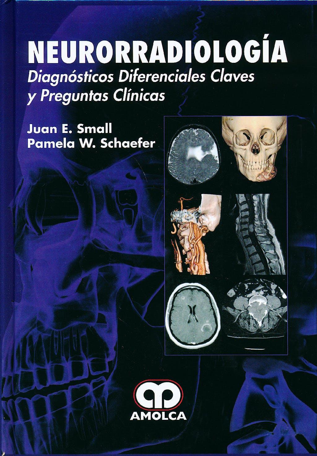 Portada del libro 9789588816814 Neurorradiología. Diagnósticos Diferenciales Claves y Preguntas Clínicas
