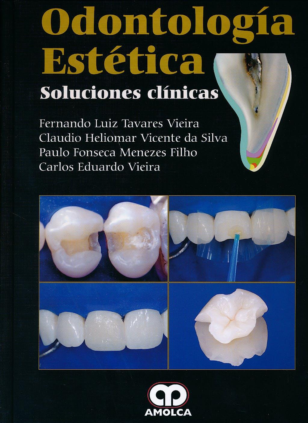Portada del libro 9789588871493 Odontología Estética. Soluciones Clínicas