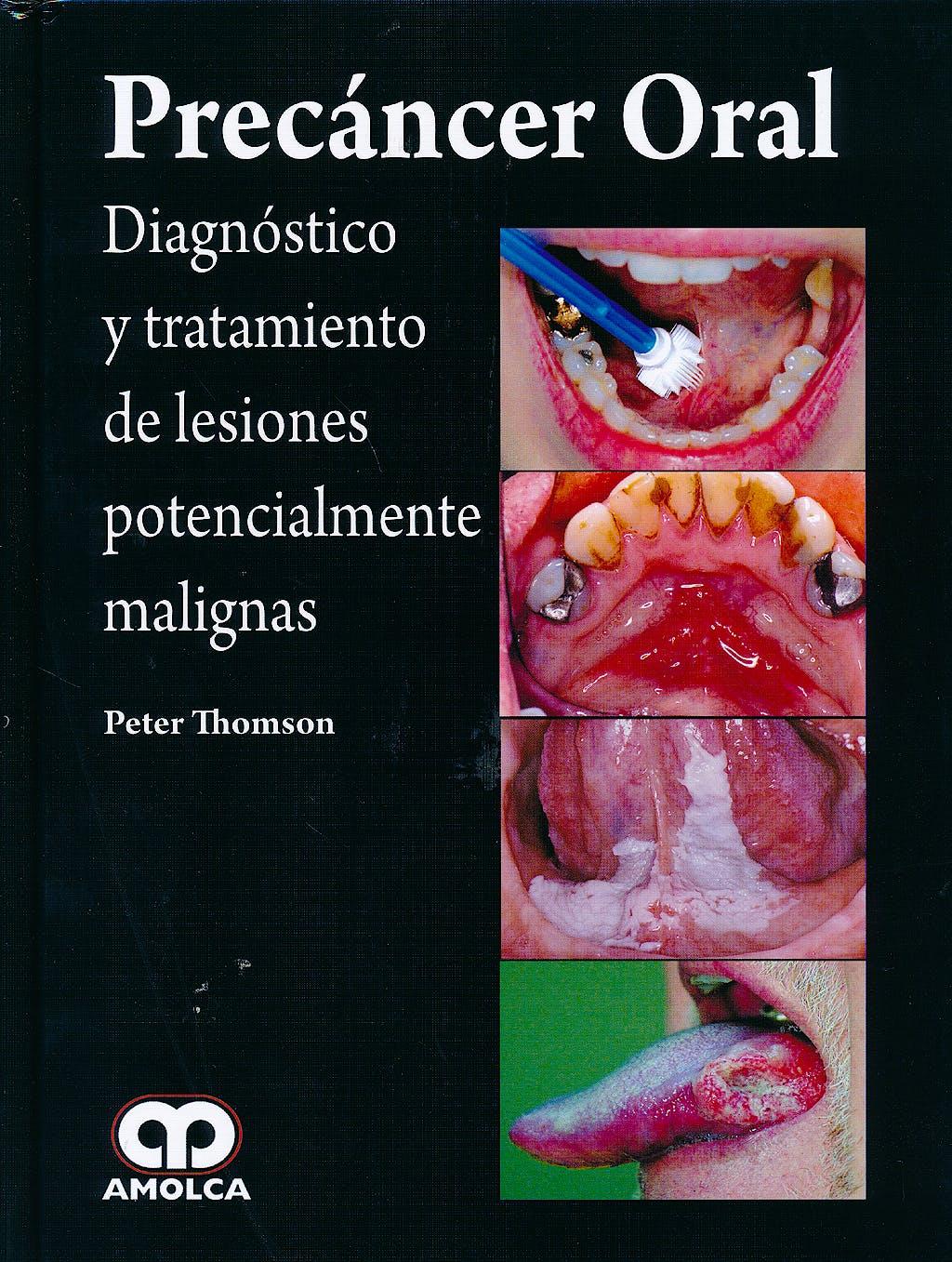 Portada del libro 9789588871585 Precáncer Oral. Diagnóstico y Tratamiento de Lesiones Potencialmente Malignas
