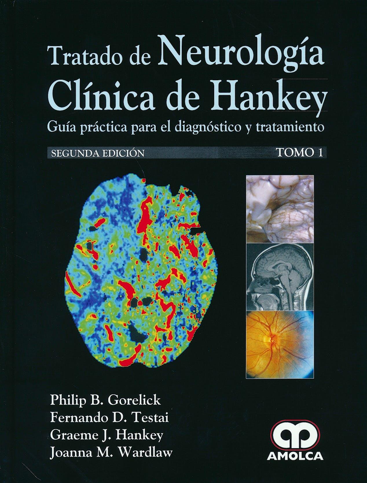 Portada del libro 9789588871653 Tratado de Neurología Clínica de Hankey. Guía Práctica para el Diagnóstico y Tratamiento, 2 Vols.