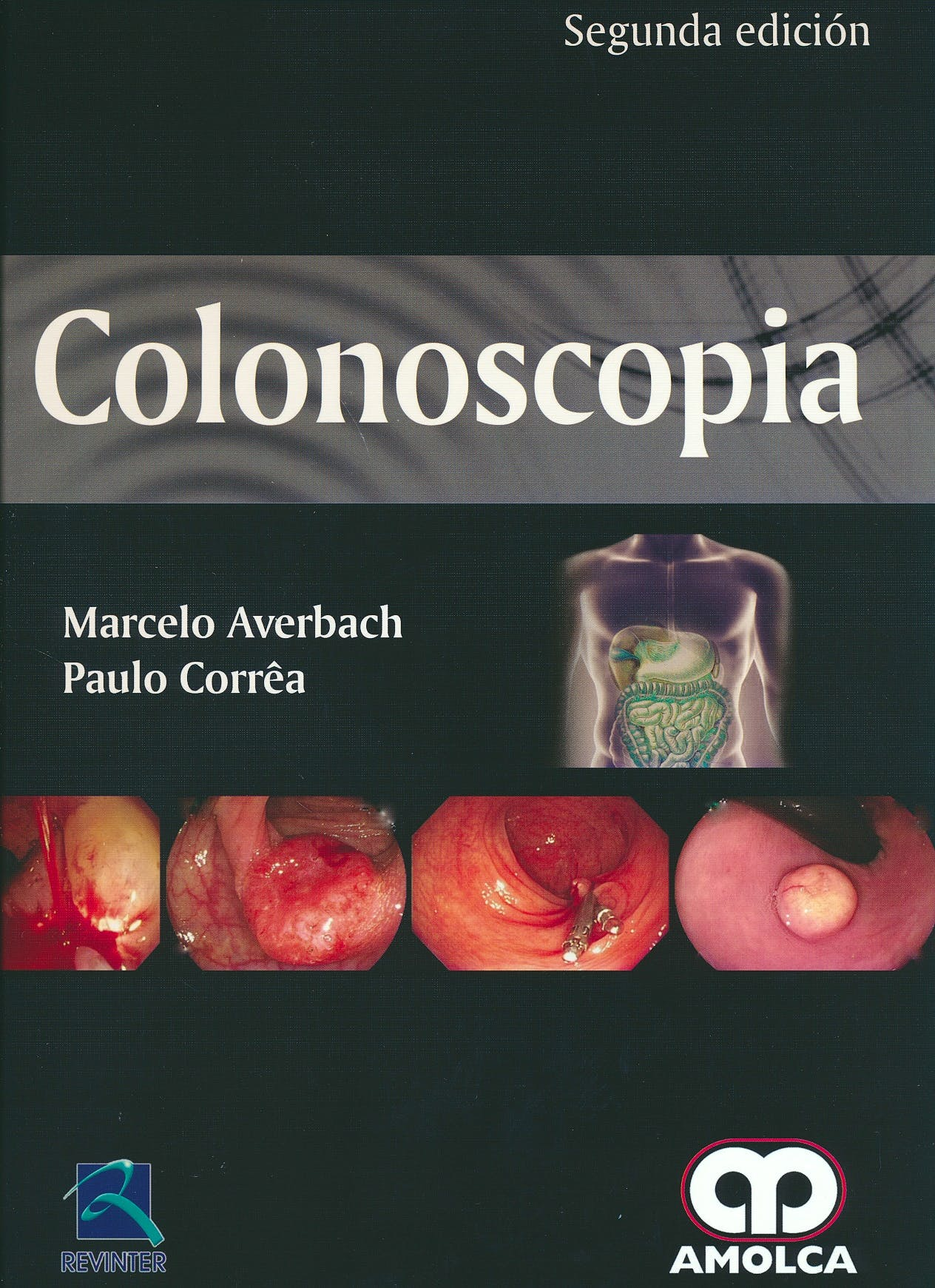 Portada del libro 9789588950136 Colonoscopia