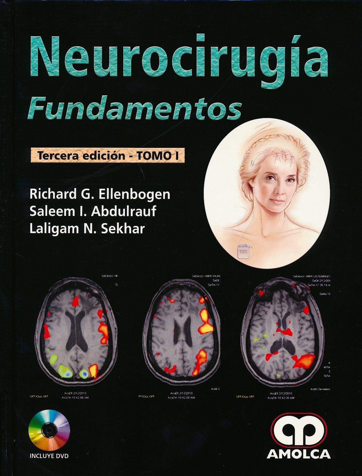 Portada del libro 9789588950204 Neurocirugía. Fundamentos, 2 Vols. + DVD