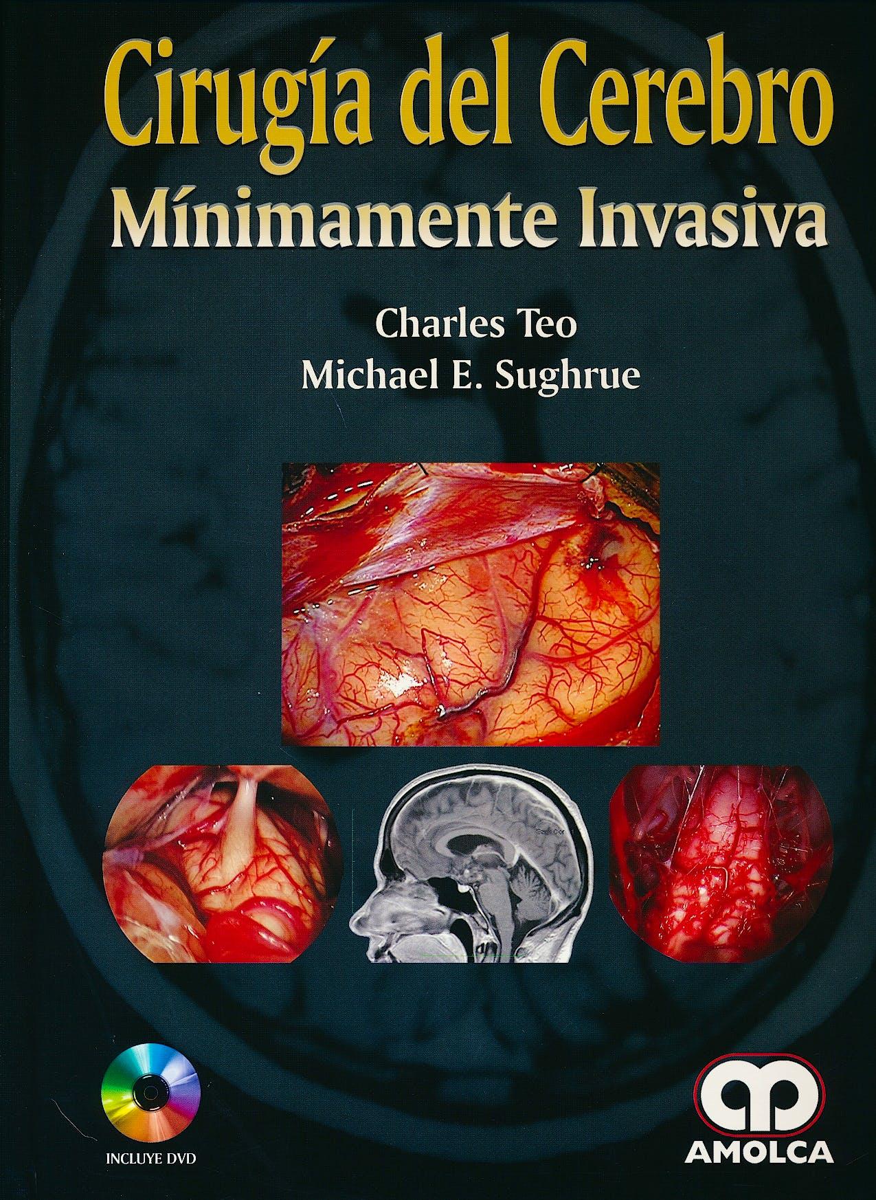 Portada del libro 9789588950273 Cirugía del Cerebro Mínimamente Invasiva + DVD