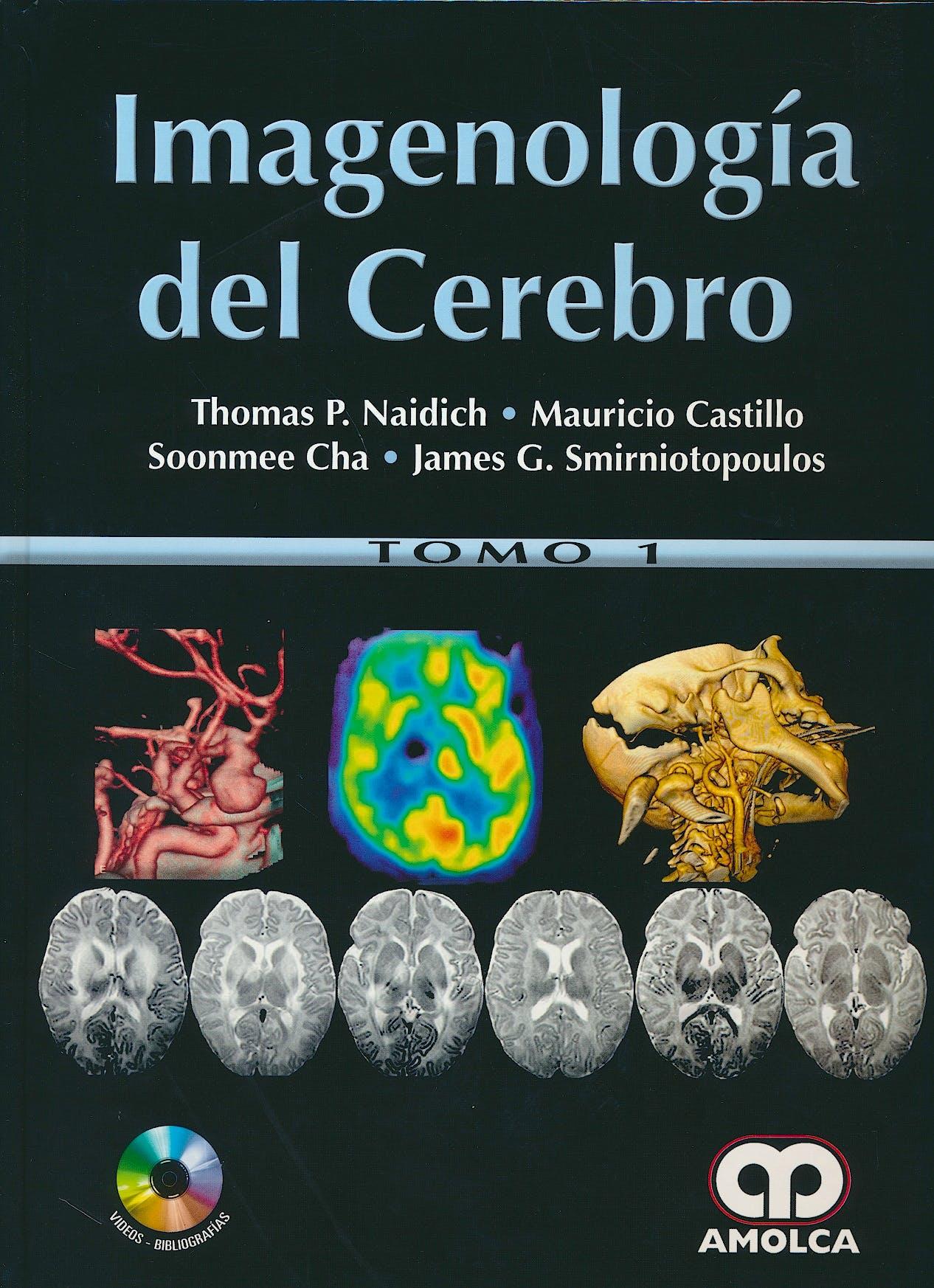 Portada del libro 9789588950280 Imagenología del Cerebro, 2 Vols. + DVD