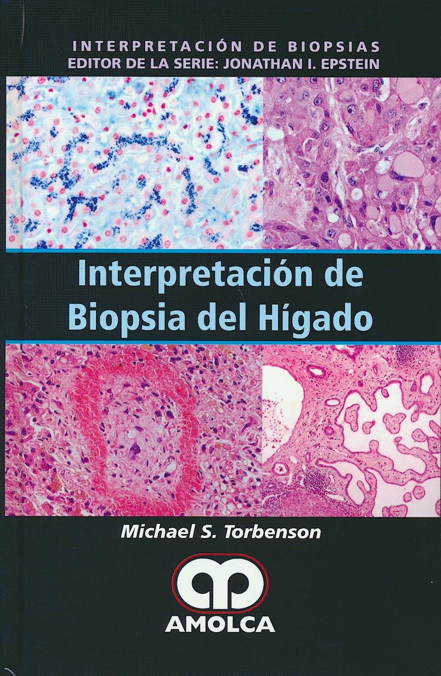 Portada del libro 9789588950389 Interpretación de Biopsia del Hígado (Interpretación de Biopsias)