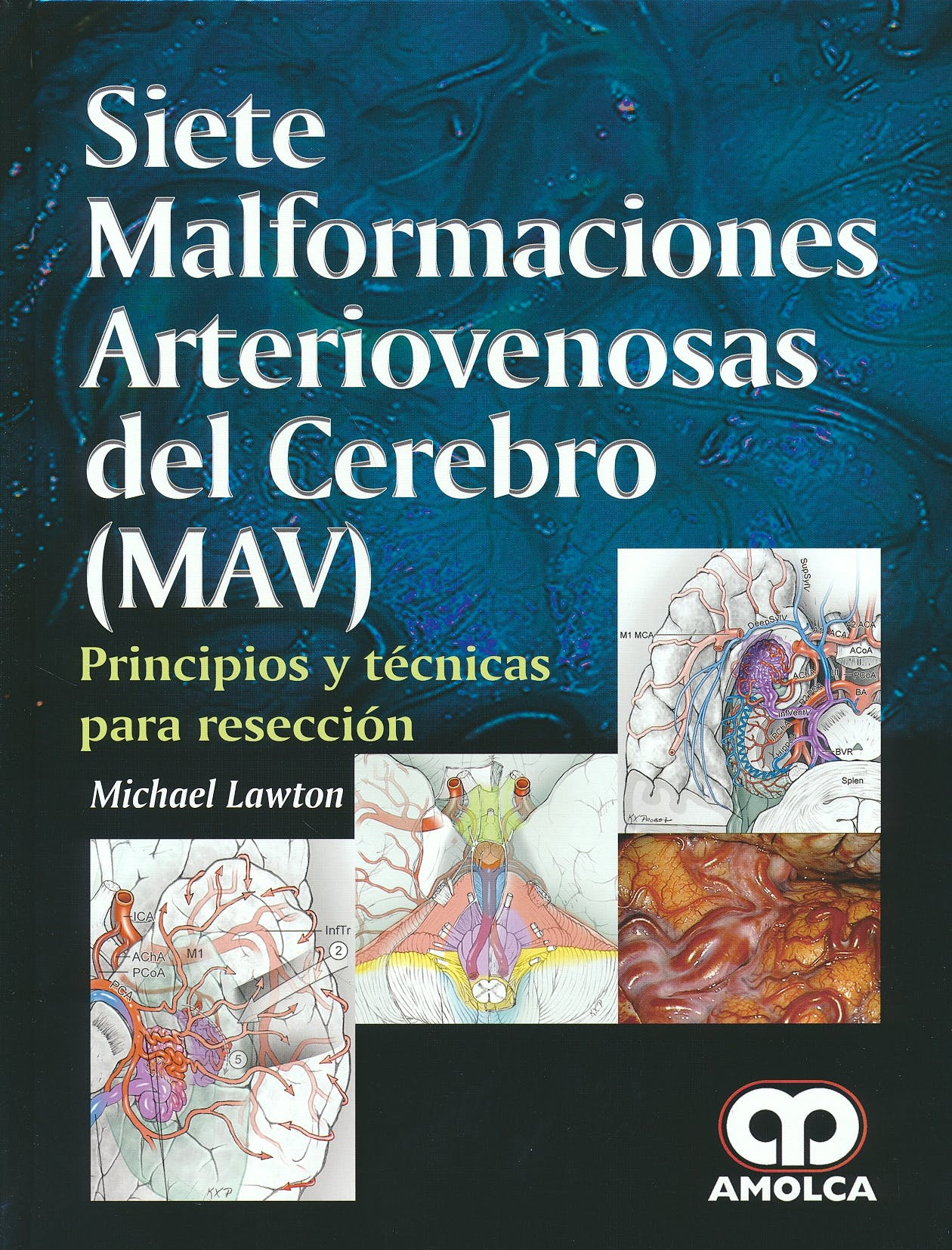 Portada del libro 9789588950402 Siete Malformaciones Arteriovenosas del Cerebro (MAV). Principios y Técnicas para Resección