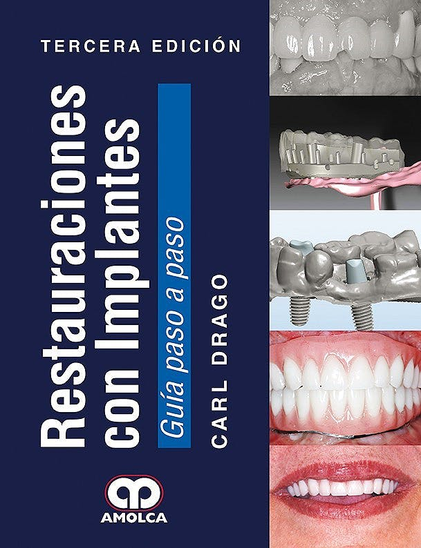Portada del libro 9789588950440 Restauraciones con Implantes. Guía Paso a Paso