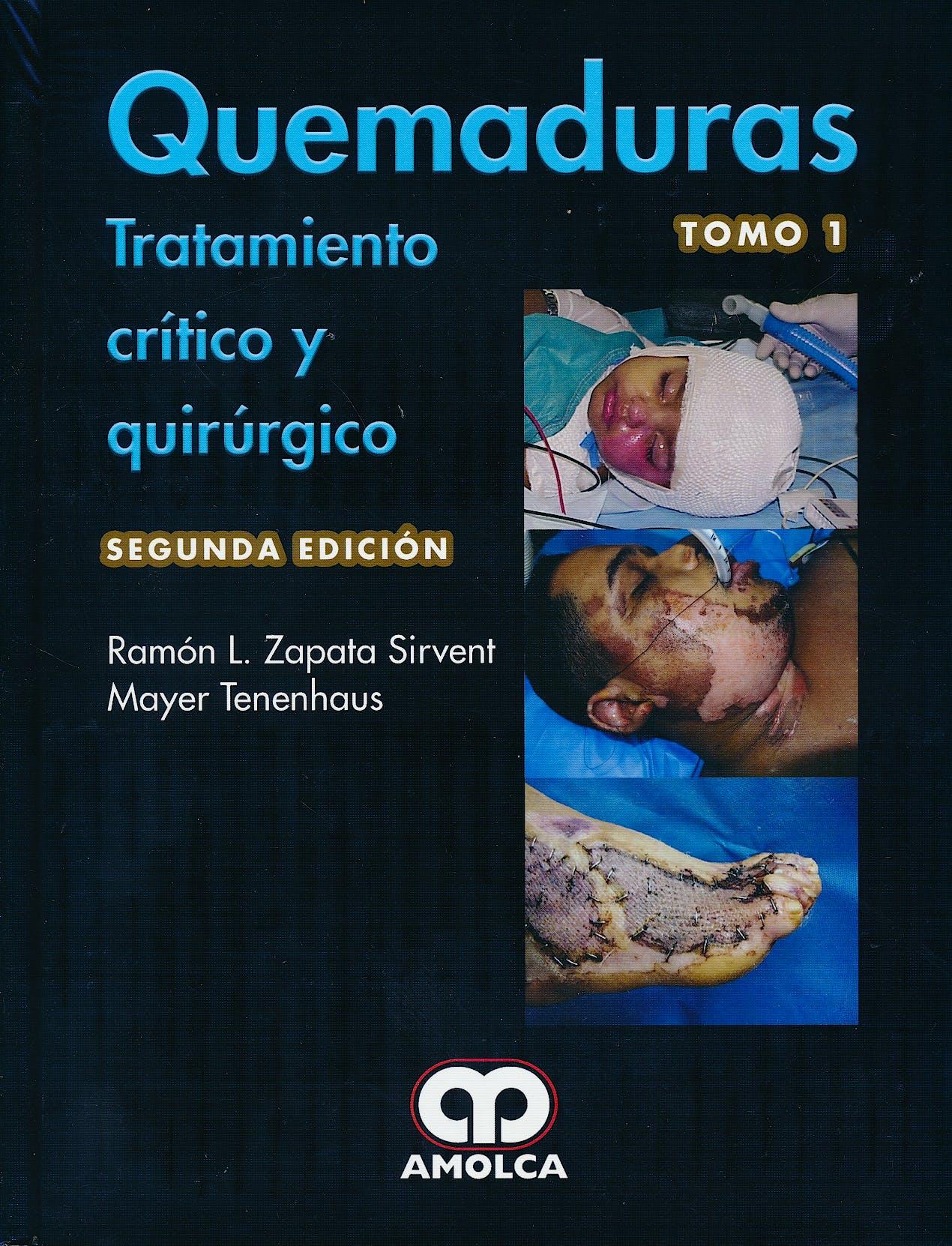 Portada del libro 9789588950631 Quemaduras. Tratamiento Crítico y Quirúrgico, 2 Vols.