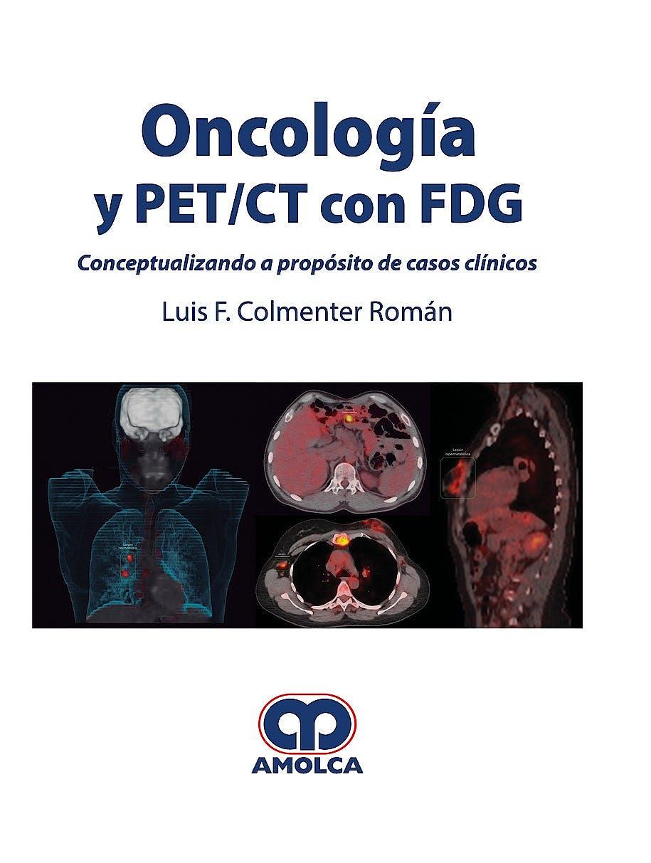 Portada del libro 9789588950853 Oncología y PET/CT con FDG. Conceptualizando a Propósito de Casos Clínicos
