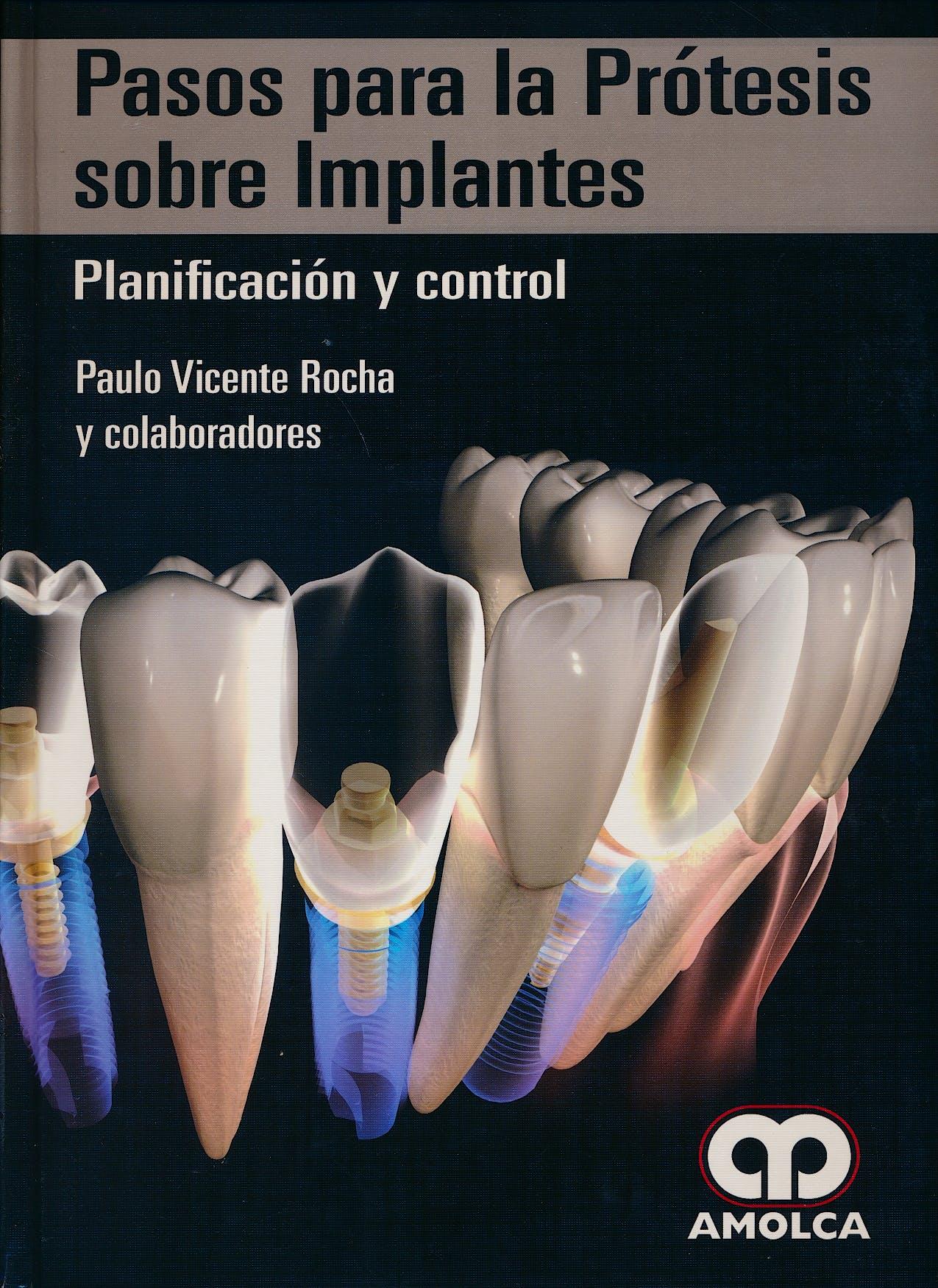 Portada del libro 9789588950921 Pasos para la Prótesis sobre Implantes. Planificación y Control