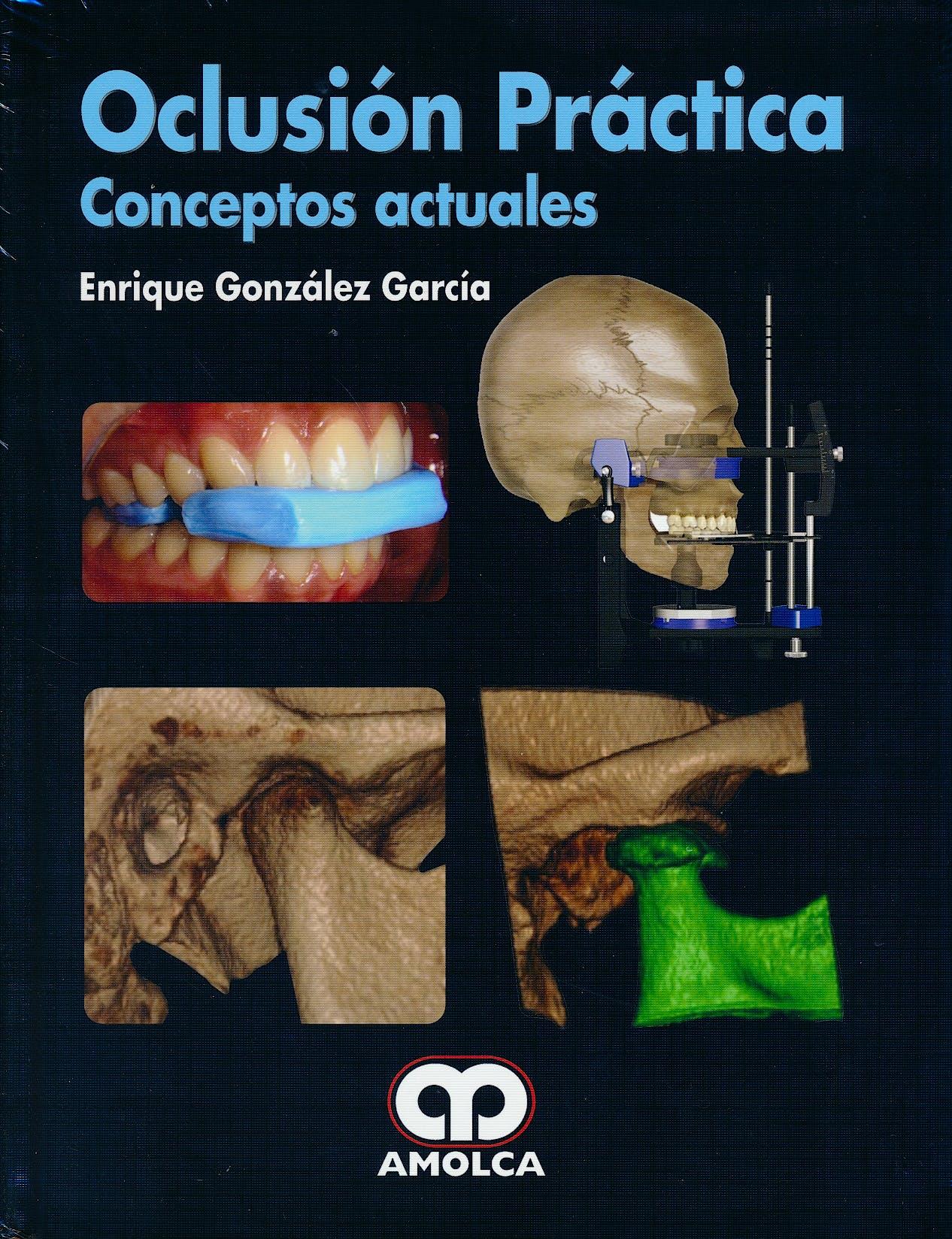 Portada del libro 9789588950983 Oclusión Práctica. Conceptos Actuales