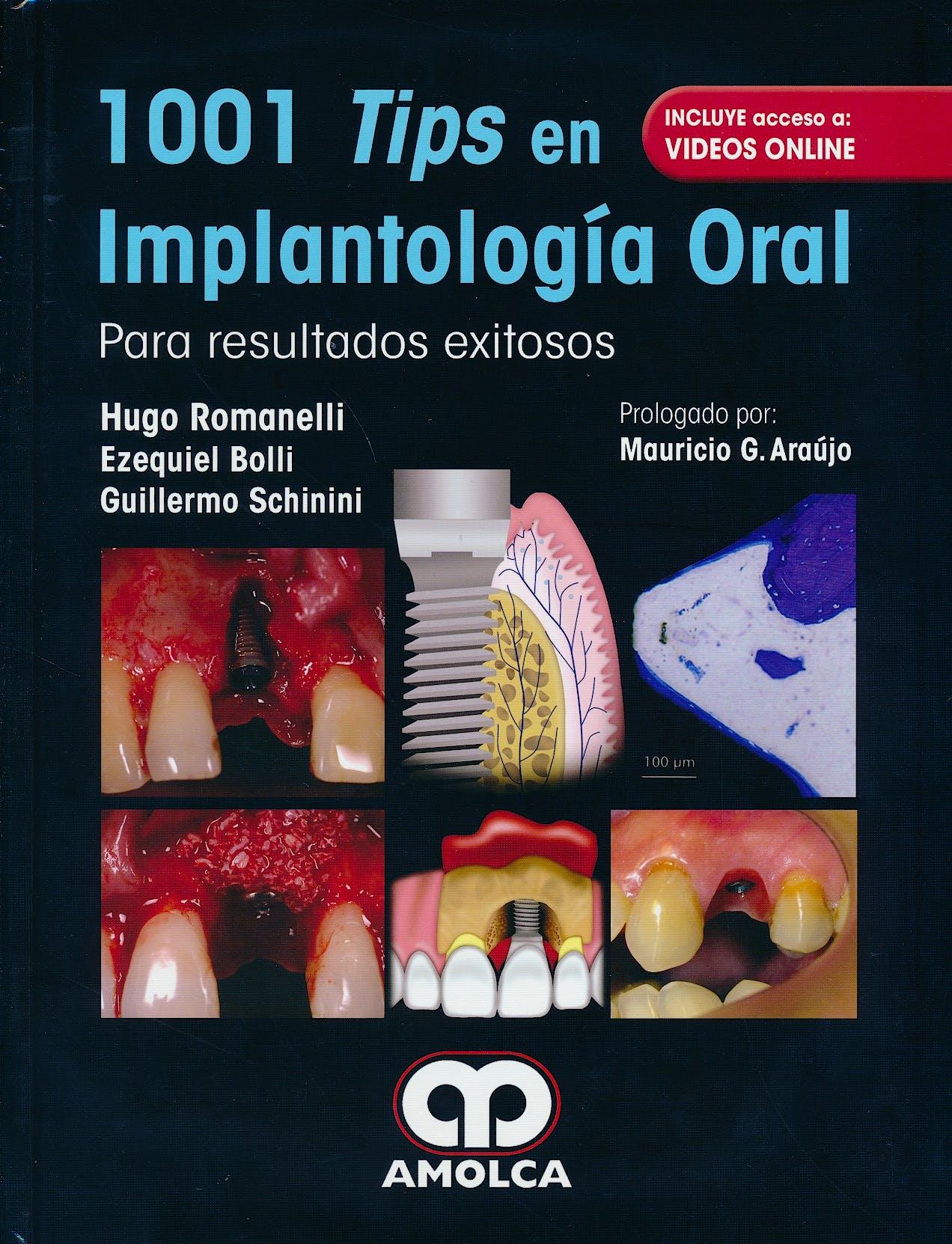 Portada del libro 9789588950990 1001 Tips en Implantología Oral para Resultados Exitosos + Acceso a Vídeos Online