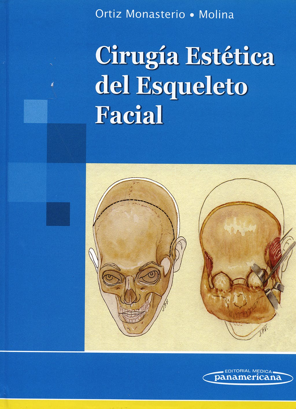 Portada del libro 9789687988603 Cirugia Estetica del Esqueleto Facial