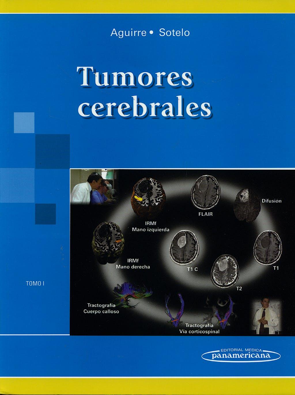 Portada del libro 9789687988849 Tumores Cerebrales, Tomo I