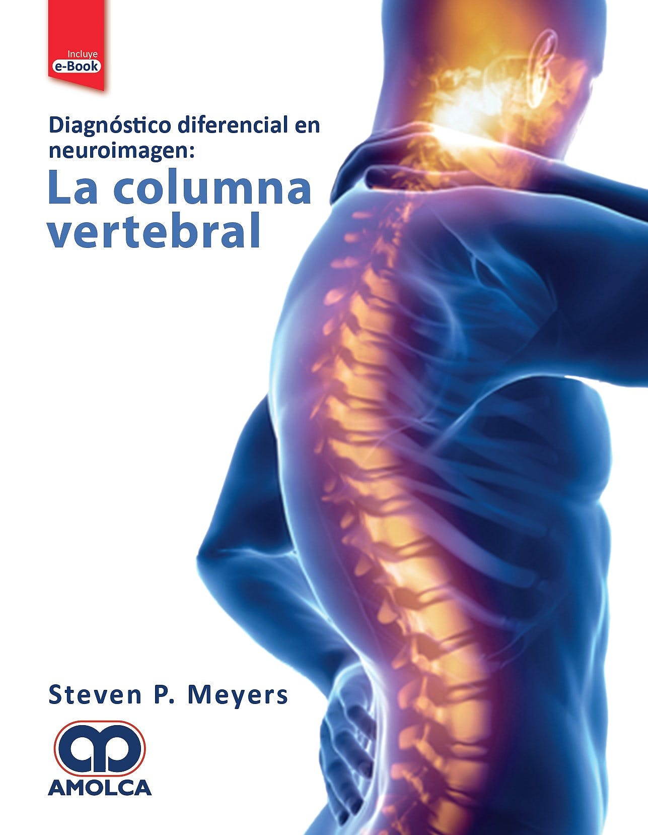 Portada del libro 9789804300004 Diagnóstico Diferencial en Neuroimagen: la Columna Vertebral + E-Book
