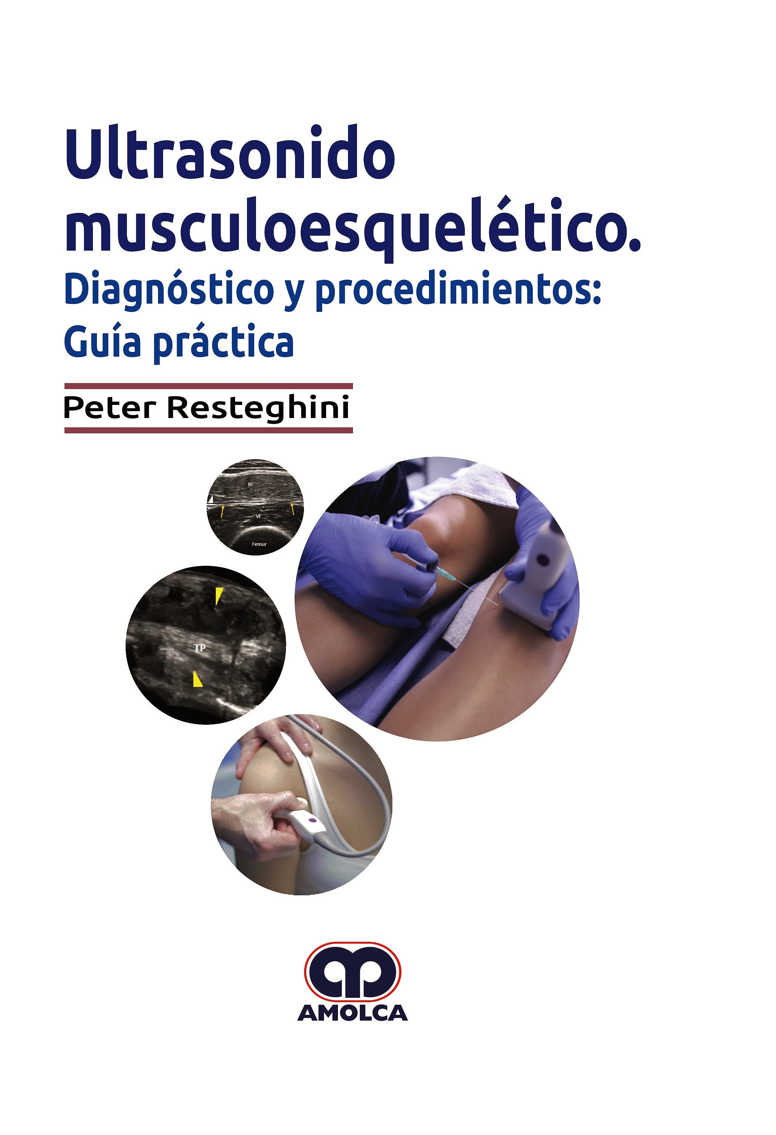 Portada del libro 9789804300103 Ultrasonido Musculoesquelético. Diagnóstico y Procedimientos: Guía Práctica