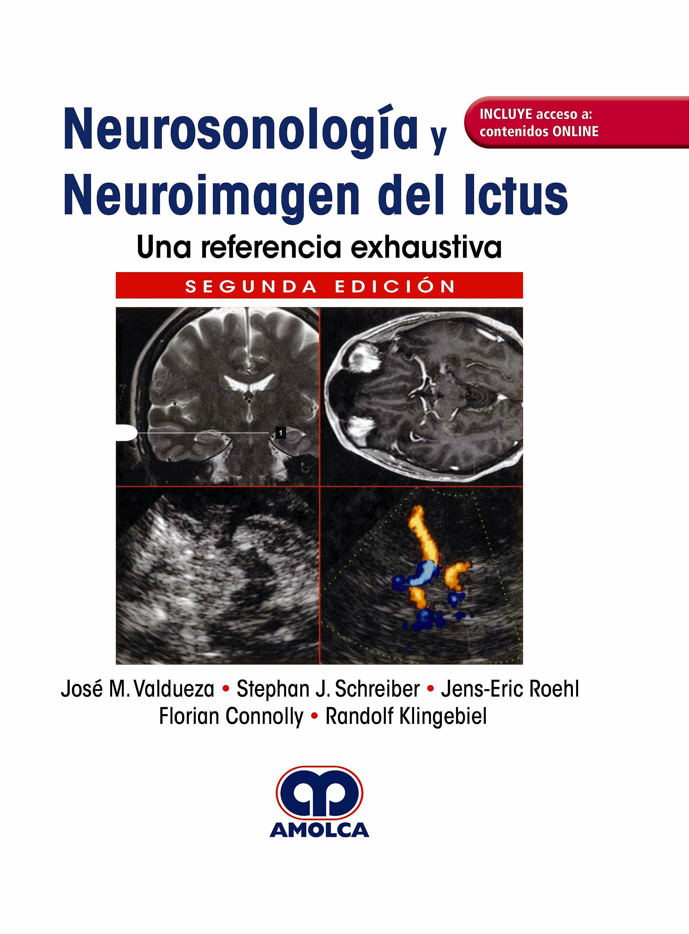 Portada del libro 9789804300165 Neurosonología y Neuroimagen del Ictus. Una Referencia Exhaustiva + Acceso a Contenidos Online