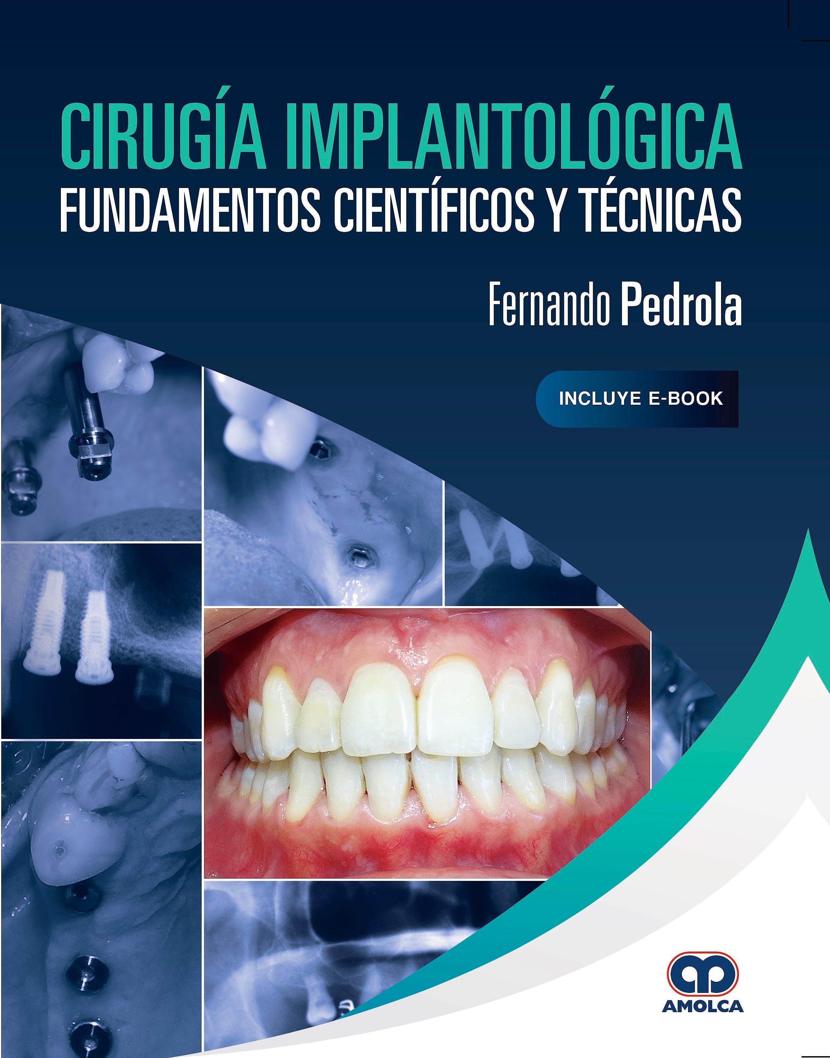 Portada del libro 9789804300356 Cirugía Implantológica. Fundamentos Científicos y Técnicas (Incluye E-Book)