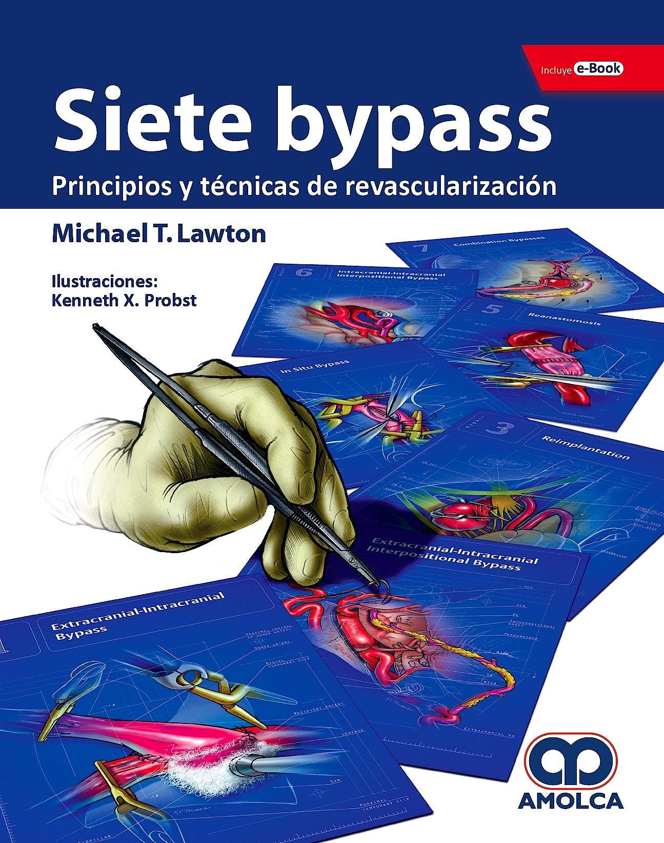Portada del libro 9789804300813 Siete Bypass. Principios y Técnicas de Revascularización + E-Book