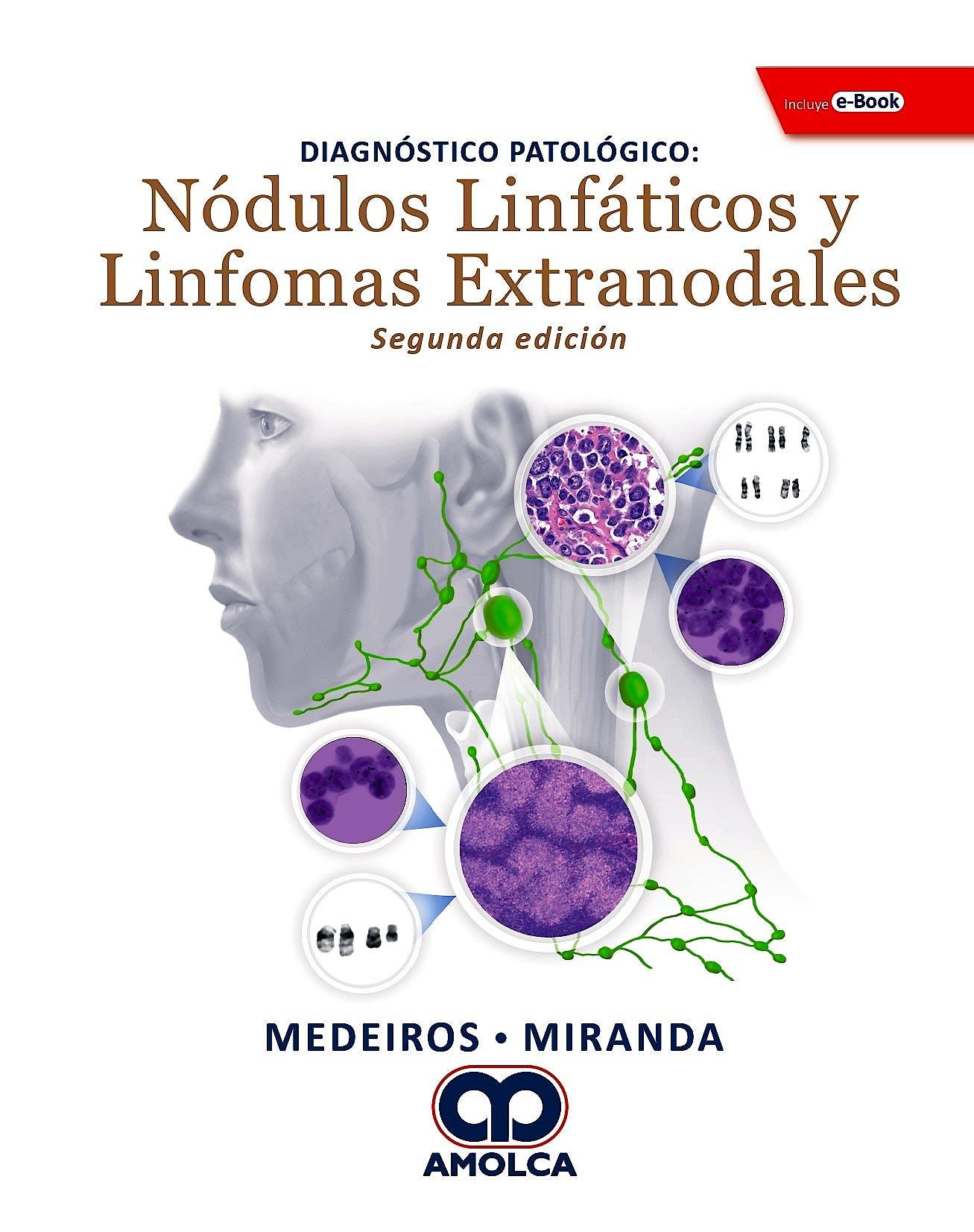 Portada del libro 9789804300851 Diagnóstico Patológico. Nódulos Linfáticos y Linfomas Extranodales + E-Book
