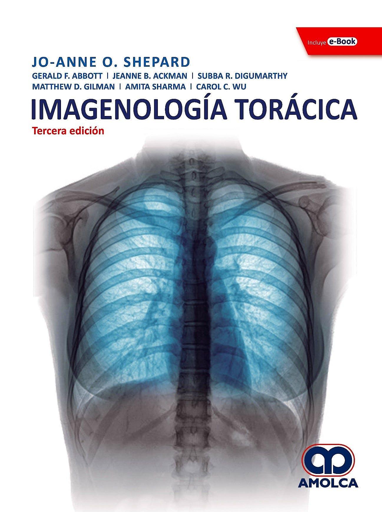Portada del libro 9789804301018 Imagenología Torácica + E-Book