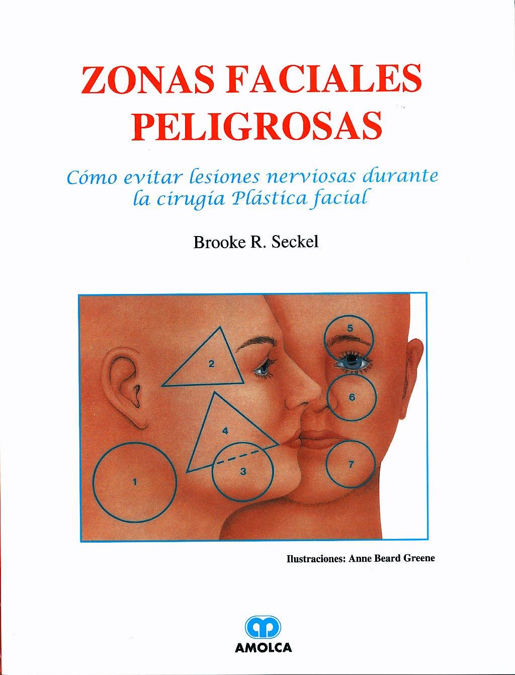 Portada del libro 9789806184596 Zonas Faciales Peligrosas. Cómo Evitar Lesiones Nerviosas Durante la Cirugía Plástica Facial