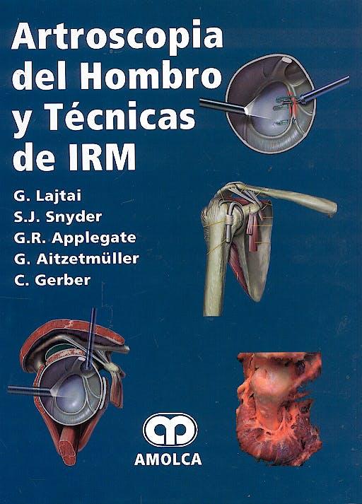 Portada del libro 9789806574076 Artroscopia del Hombro y Tecnicas de Irm