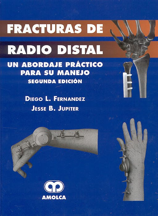 Portada del libro 9789806574212 Fracturas de Radio Distal. Un Abordaje Práctico para su Manejo