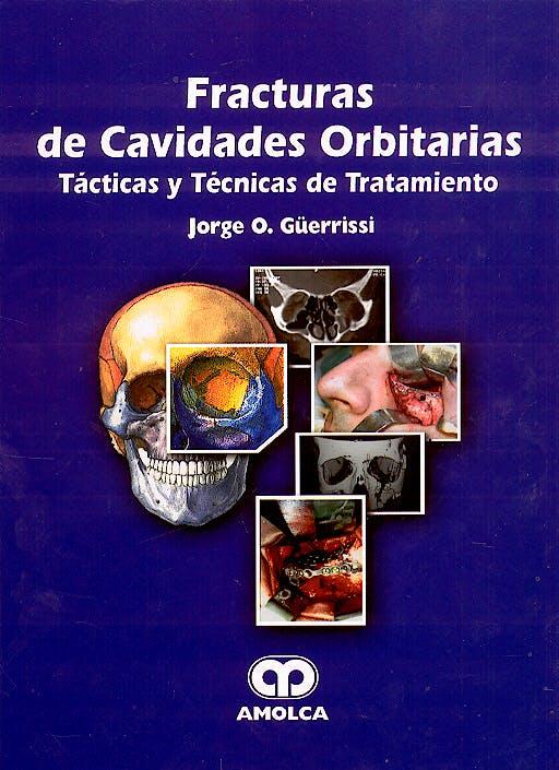 Portada del libro 9789806574359 Fracturas de Cavidades Orbitarias. Tácticas y Técnicas de Tratamiento