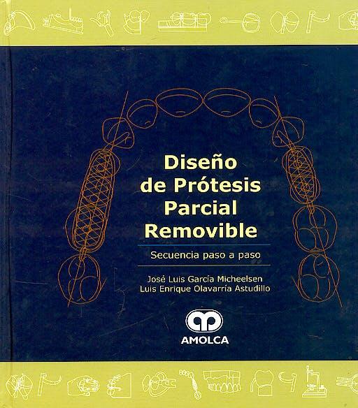 Portada del libro 9789806574403 Diseño de Prótesis Parcial Removible. Secuencia Paso a Paso