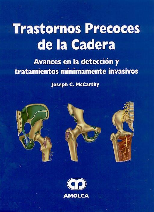 Portada del libro 9789806574434 Trastornos Precoces de la Cadera. Avances en la Deteccion y Tratamientos Minimamente Invasivos