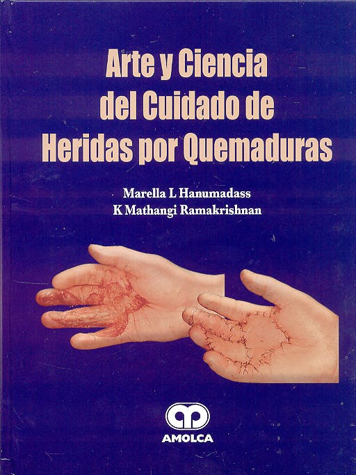 Portada del libro 9789806574519 Arte y Ciencia del Cuidado de Heridas por Quemaduras