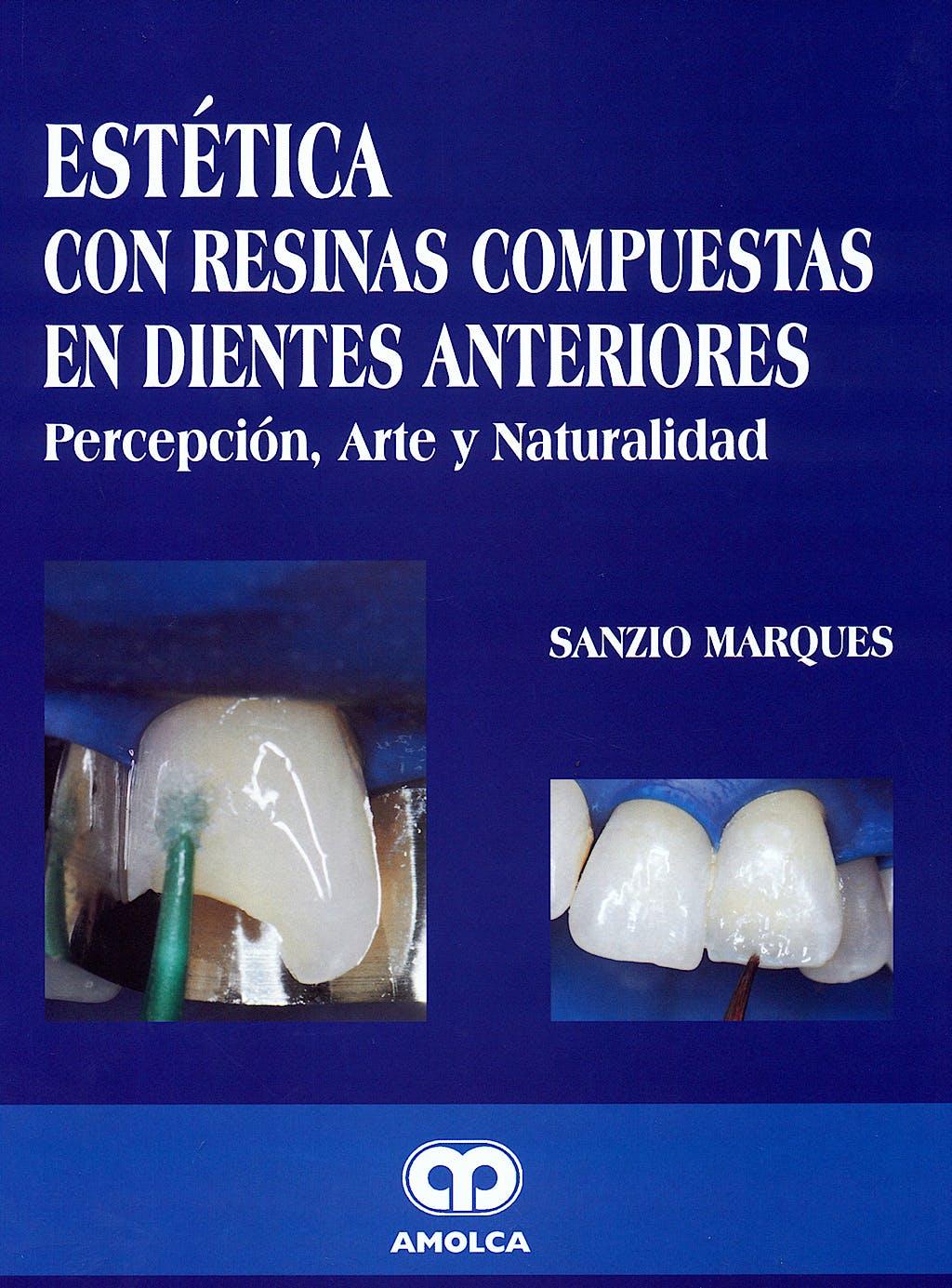 Portada del libro 9789806574588 Estética con Resinas Compuestas en Dientes Anteriores. Percepción, Arte y Naturalidad