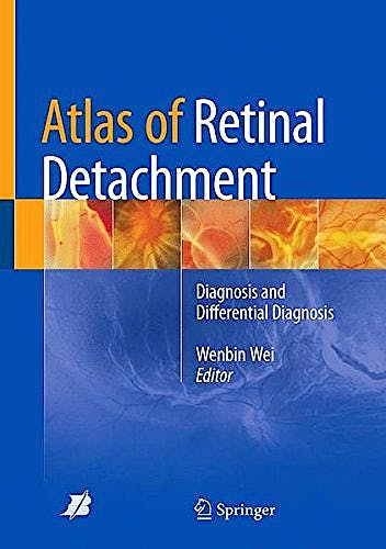 Portada del libro 9789811082306 Atlas of Retinal Detachment. Diagnosis and Differential Diagnosis
