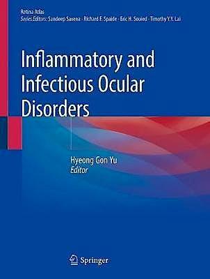 Portada del libro 9789811385483 Inflammatory and Infectious Ocular Disorders