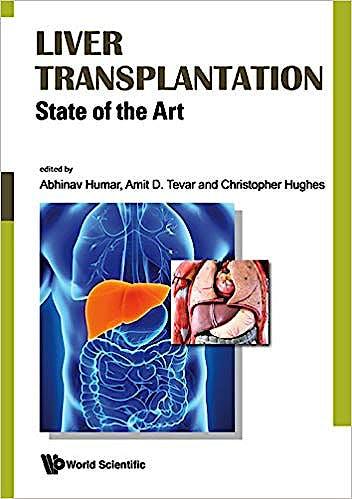 Portada del libro 9789813234673 Liver Transplantation. State of the Art