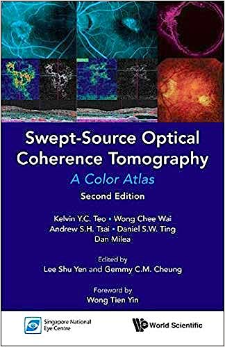 Portada del libro 9789813239562 Swept-Source Optical Coherence Tomography. A Color Atlas
