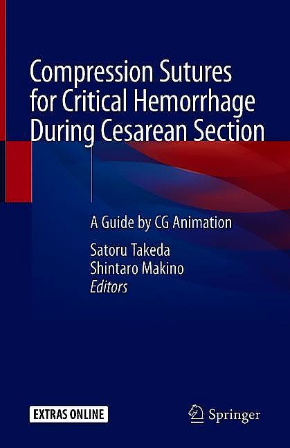 Portada del libro 9789813294592 Compression Sutures for Critical Hemorrhage During Cesarean Section. A Guide by CG Animation