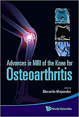 Portada del libro 9789814271707 Advances in Mri of the Knee for Osteoarthritis