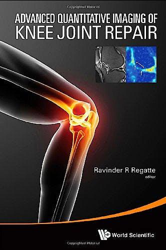 Portada del libro 9789814579322 Advanced Quantitative Imaging of Knee Joint Repair