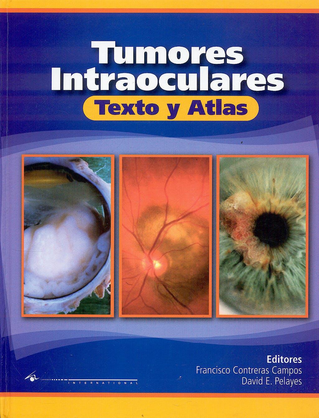 Portada del libro 9789870559337 Tumores Intraoculares. Texto y Atlas